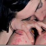 Psoriasis, enfermedad no contagiosa