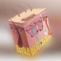 Dermatitis seborréica y sus tratamientos