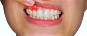 tratamiento gingivitis